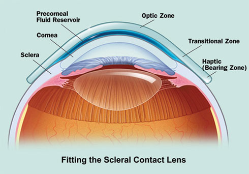 Example of how a scleral lens sits on the eye